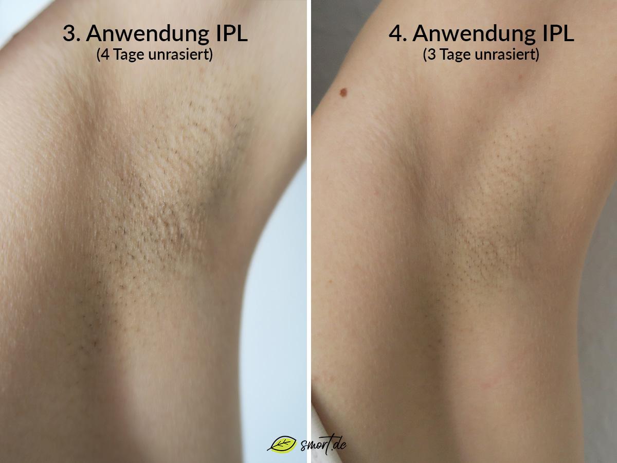 IPL Ergebnisse: Nach der 3. Anwendung bereits sichtbare Haarlücken, nach der 4. Anwendung verlangsamtes Haarwachstum #resultat #erfahrung #test #ipl