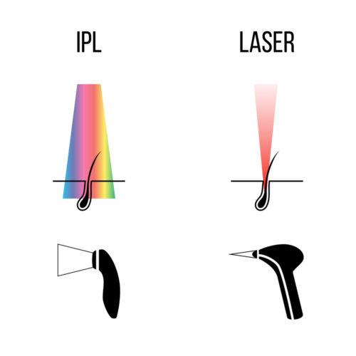 Unterschied IPL und LASER