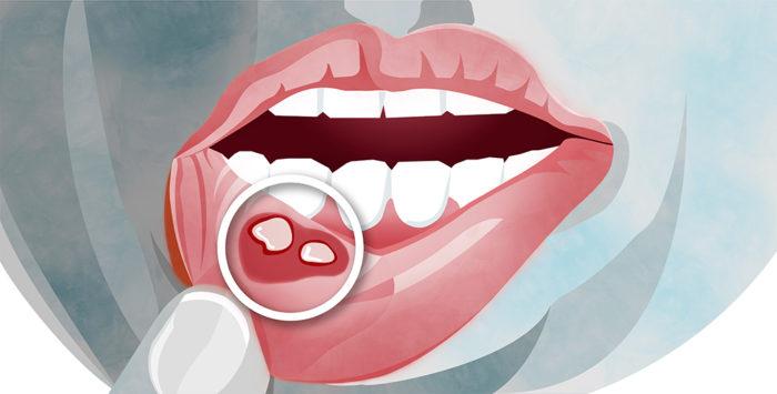 Schmerzhafte Aphten im Mund